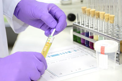cannabis urine test