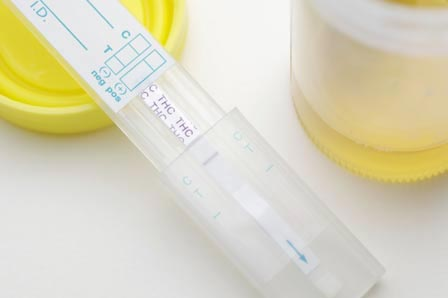 urine drug testing in Gold Coast